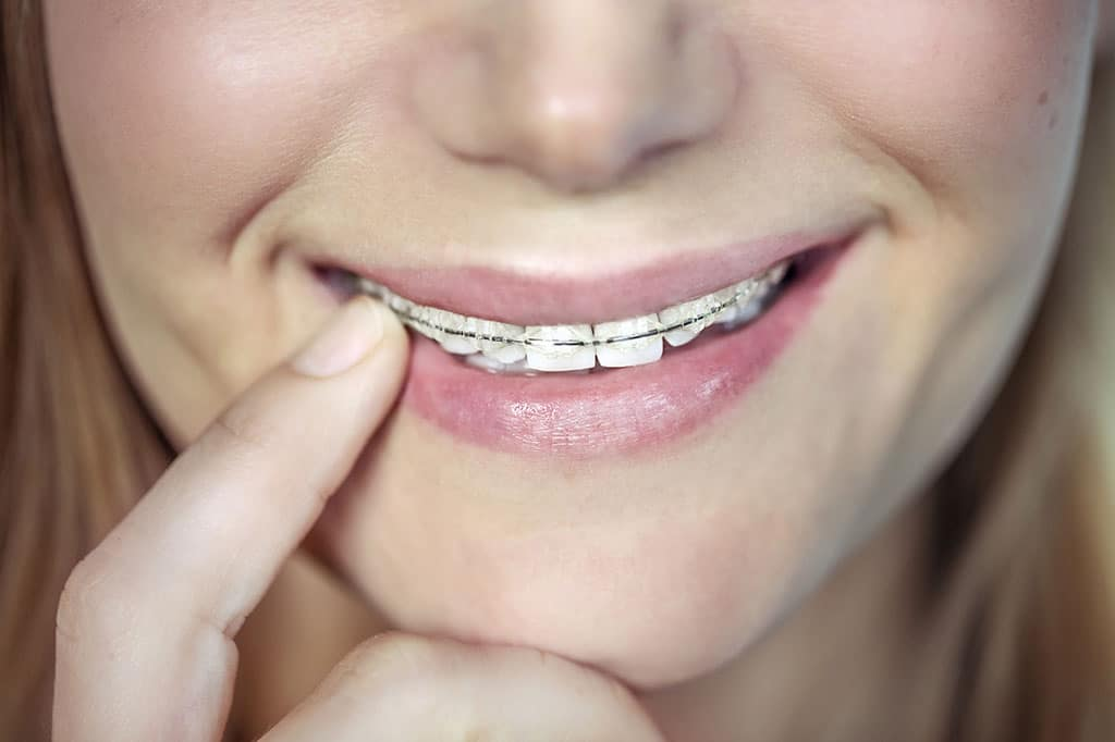 Dental Braces on teenager