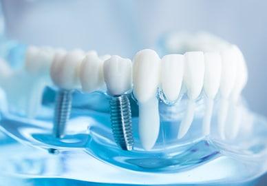 Dental implants in Wagga